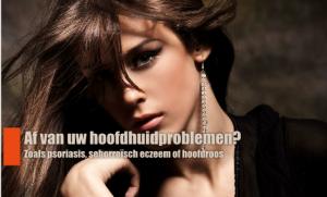 hoofdhuid-zonder-seboroisch-eczeem